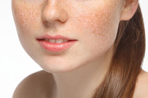 Làm thế nào để có một làn da đẹp