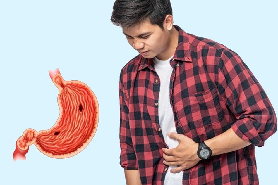 Dấu hiệu nhận biết, nguyên nhân bệnh viêm loét dạ dày tá tràng