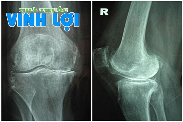 Chẩn đoán bệnh thoái hóa khớp bằng cách chụp X-quang