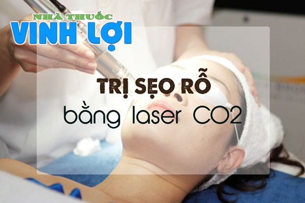 Công nghệ trị sẹo bằng tia Laser CO2 là công nghệ hiện đại đang rất phổ biến