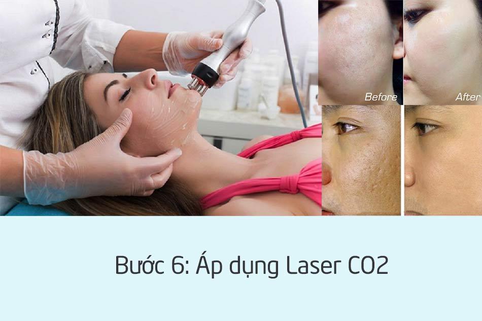 Trị sẹo rỗ bằng Laser CO2