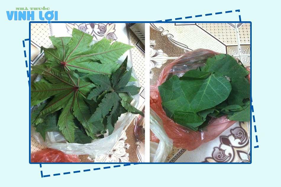 Chữa bệnh trĩ bằng lá Thầu dầu tía và lá Vông nem