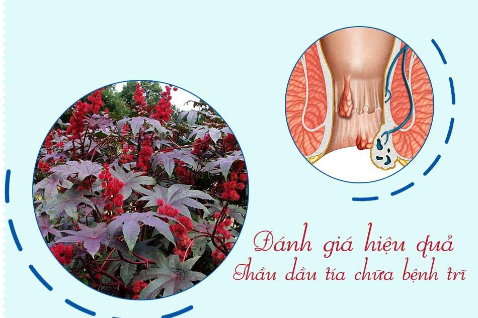 Đánh giá hiệu quả phương pháp chữa bệnh trĩ bằng Thầu dầu tía