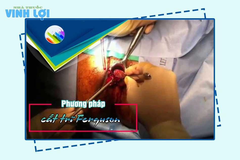Phẫu thuật cắt mổ trĩ bằng phương pháp Ferguson