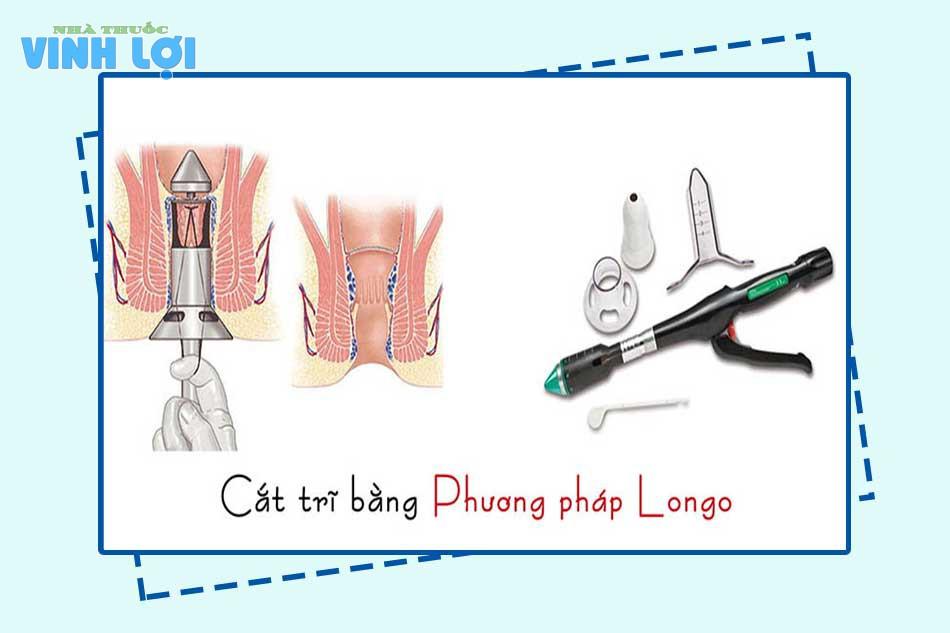Phẫu thuật cắt mổ trĩ bằng phương pháp Longo