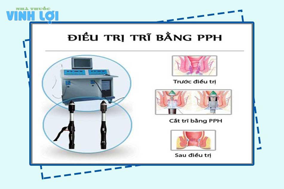 Phẫu thuật cắt mổ trĩ bằng phương pháp PPH