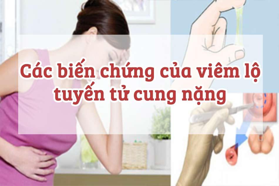 Các biến chứng của viêm lộ tuyến tử cung nặng