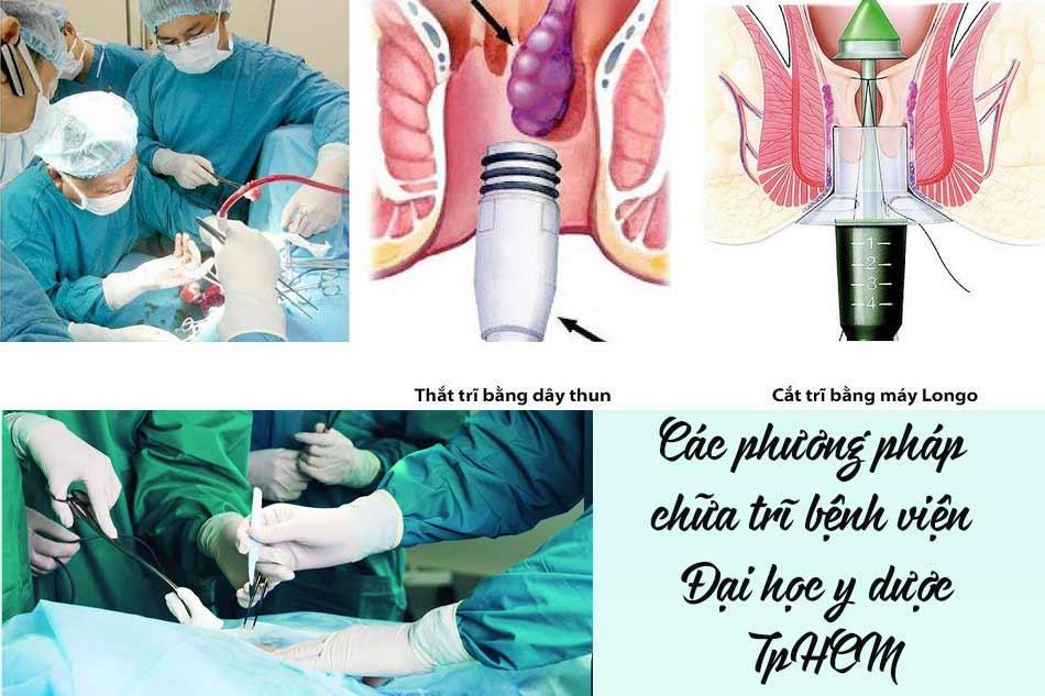 Các phương pháp chữa trĩ ở bệnh viện Đại học y dược TpHCM?