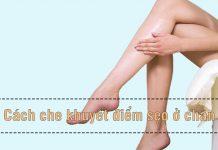 Cách che khuyết điểm ở chân khi mặc váy