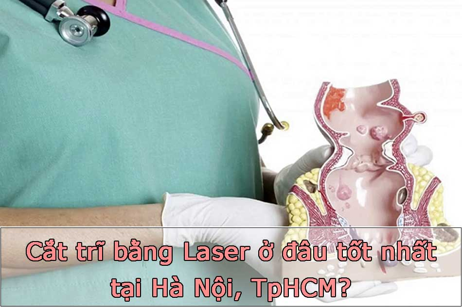 Cắt trĩ bằng Laser ở đâu tốt nhất tại Hà Nội, TpHCM?