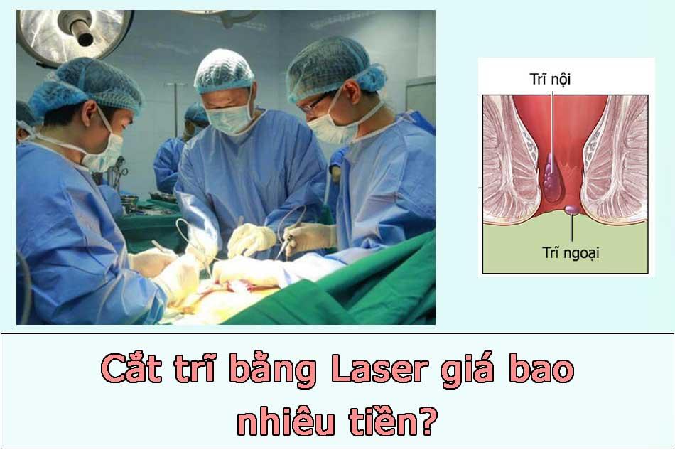 Cắt trĩ bằng Laser giá bao nhiêu tiền?