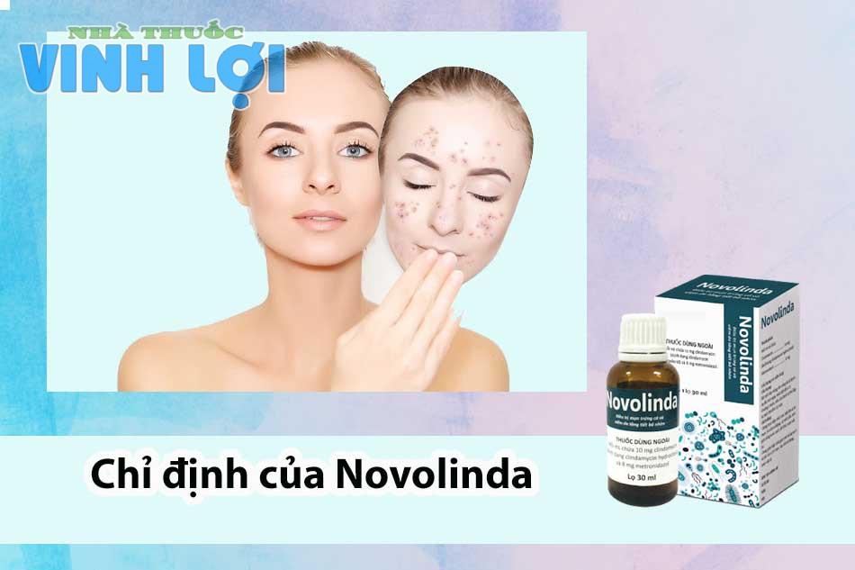 Chỉ định của Novolinda