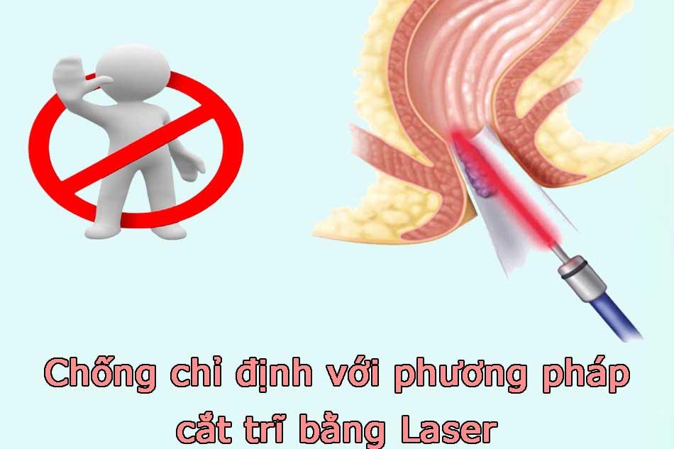 Chống chỉ định với phương pháp cắt trĩ bằng Laser