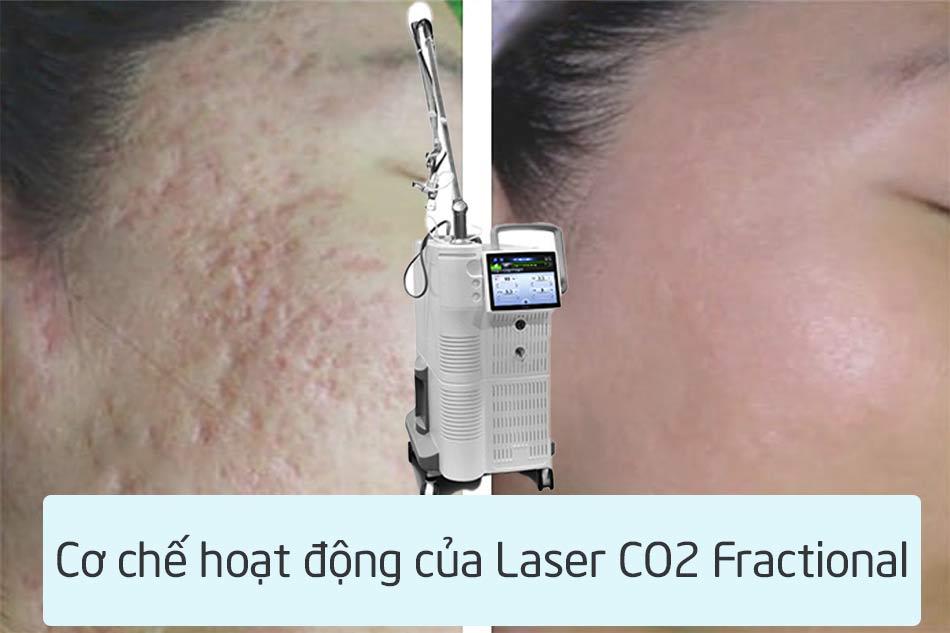 Cơ chế hoạt động của Laser Co2