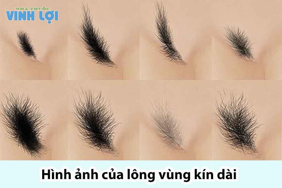 Hình ảnh của lông vùng kín quá dài