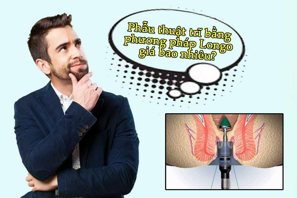 Phẫu thuật trĩ bằng phương pháp Longo giá bao nhiêu?
