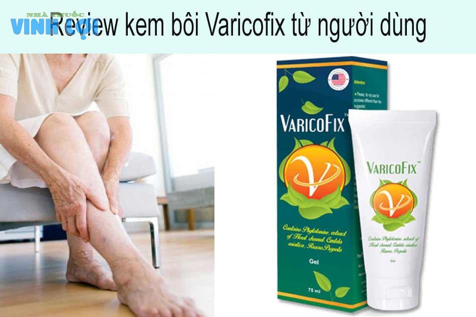 Review kem bôi giãn tĩnh mạch Varicofix từ người dùng