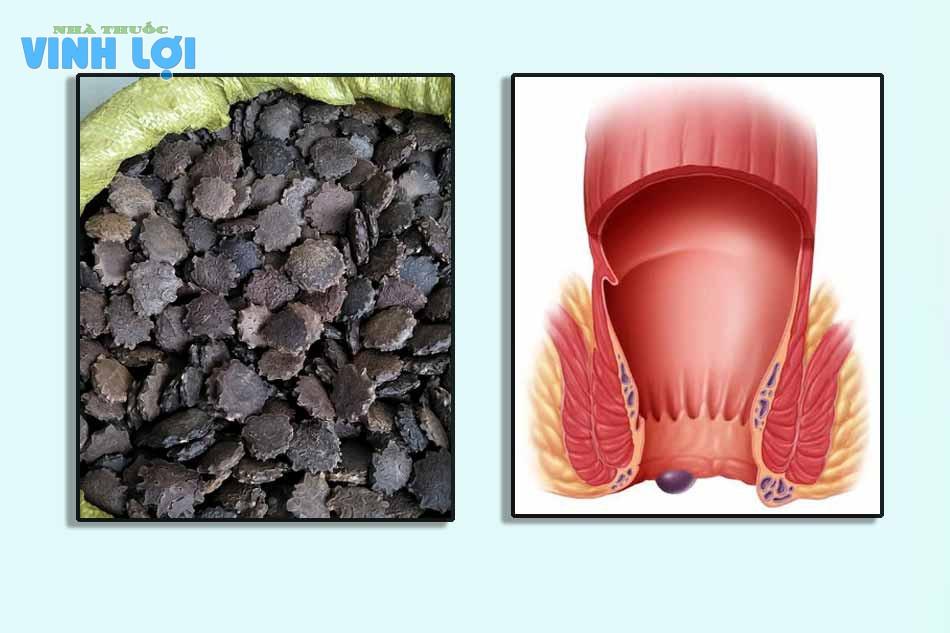 Tại sao hạt gấc có thể chữa bệnh trĩ?