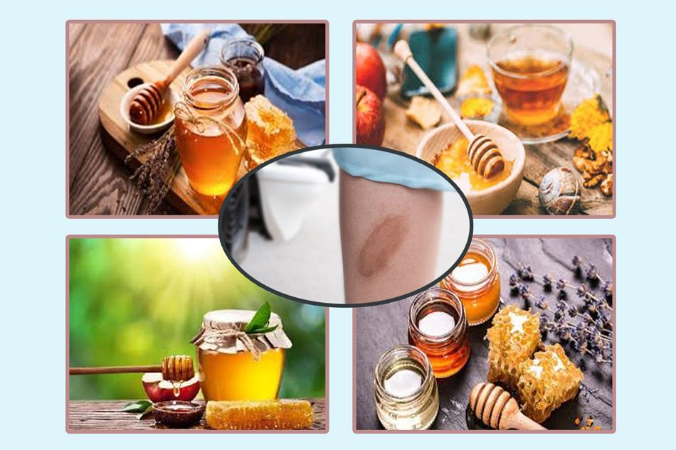 Cách trị sẹo bỏng lâu năm bằng nghệ và mật ong