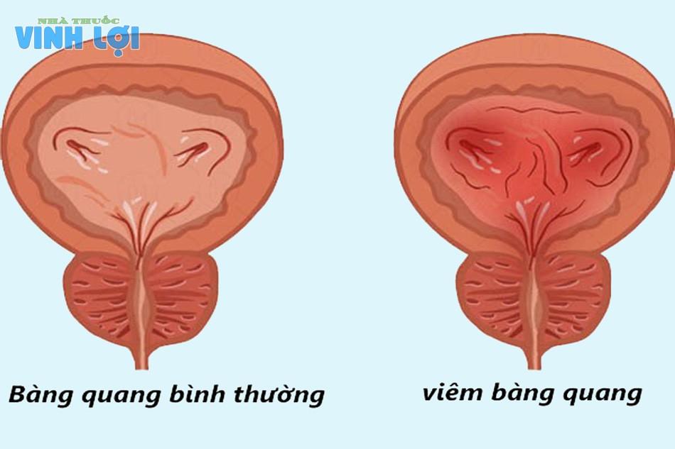 Viêm bàng quang là bệnh lý mà bàng quang bị viêm nhiễm, nguyên nhân chủ yếu do vi khuẩn gây ra
