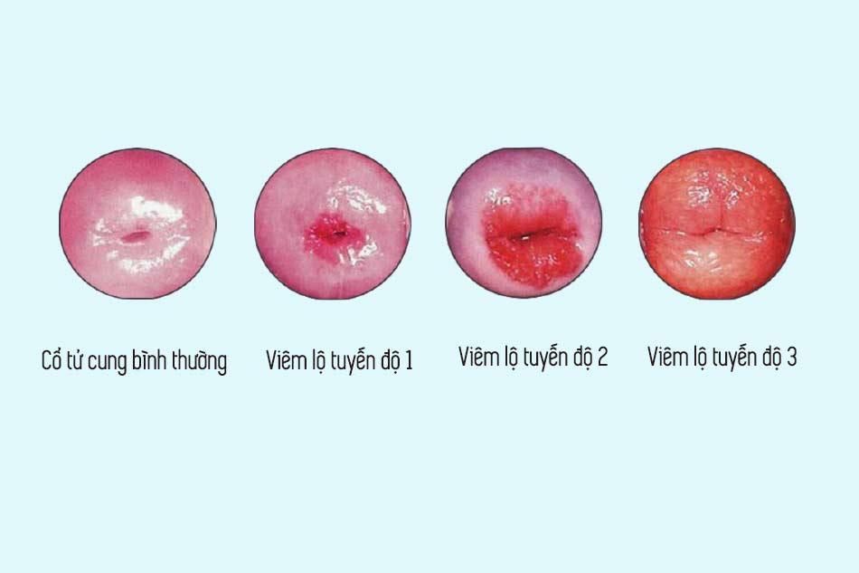 Phân loại viêm lộ tuyến cổ tử cung