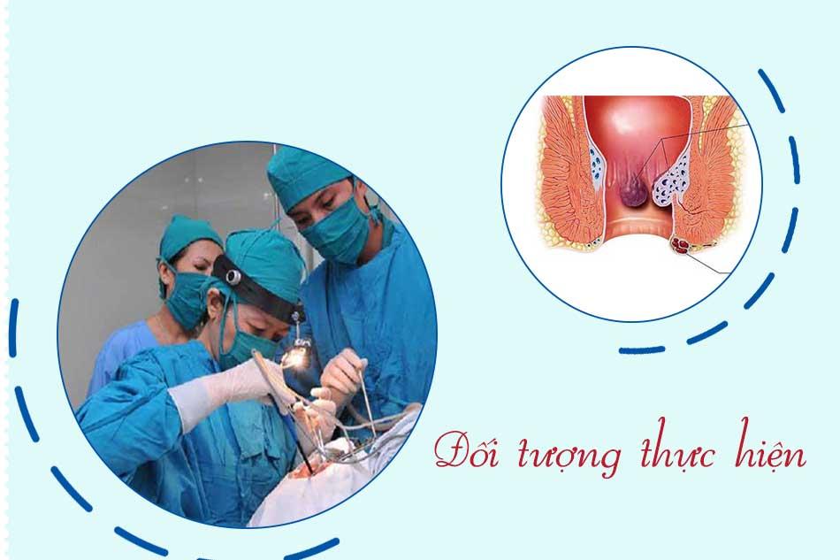 Đối tượng thực hiện cắt trĩ bằng phương pháp HCPT