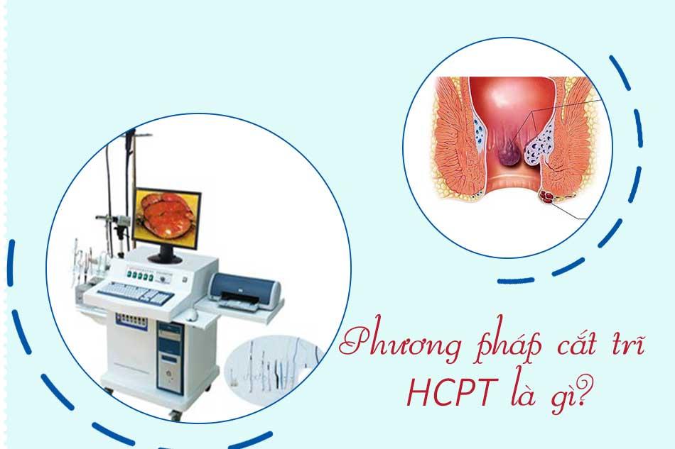 Phương pháp cắt trĩ HCPT là gì?