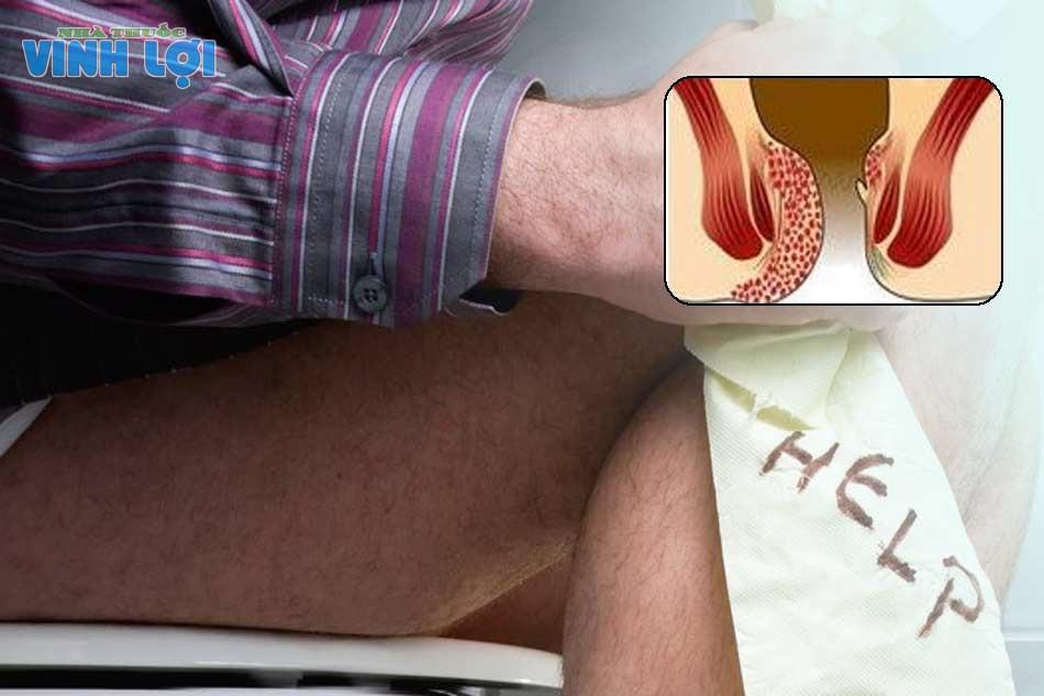 Biểu hiện dấu hiệu triệu chứng trĩ nội độ 4