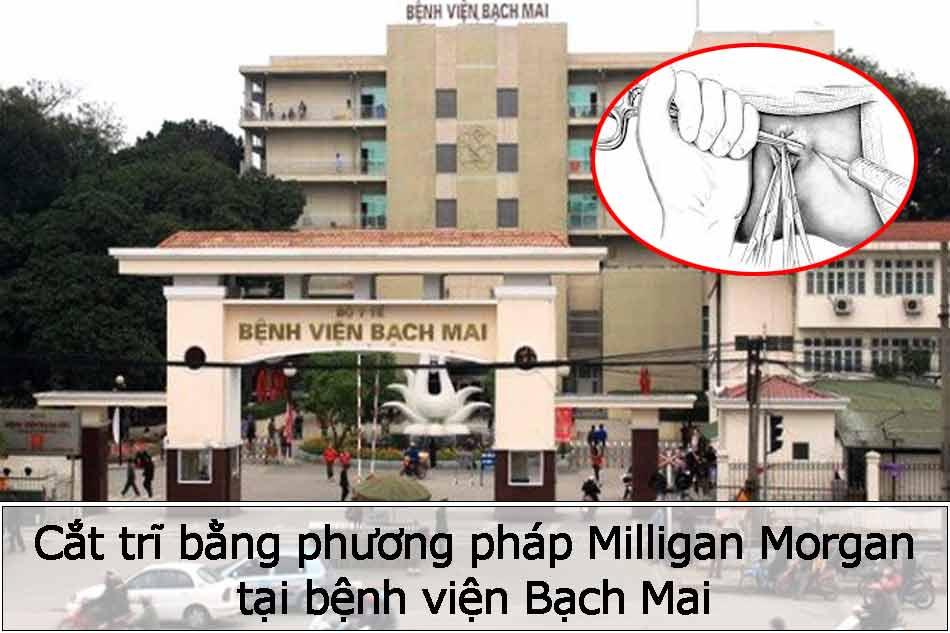 Cắt trĩ bằng phương pháp Milligan Morgan tại bệnh viện Bạch Mai