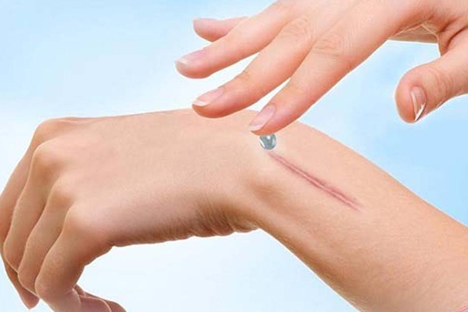 Kem trị sẹo Kjinpbnh dùng cho các đối tượng sẹo thâm, sẹo lồi,..