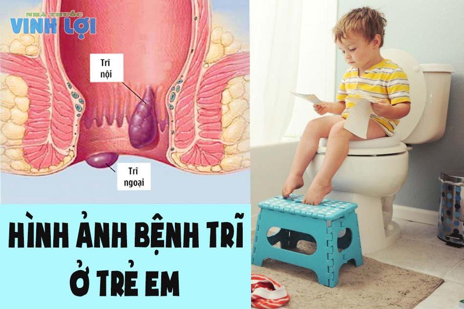 Hình ảnh bệnh trĩ ở trẻ em
