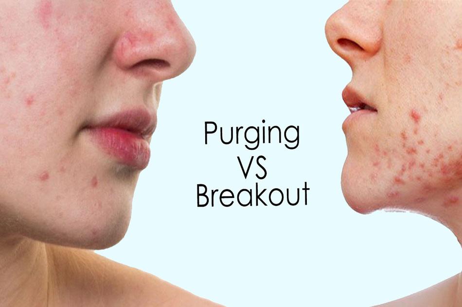 Phân biệt hai hiện tượng Purging (đẩy mụn quá nhiều) và Break out (kích ứng)
