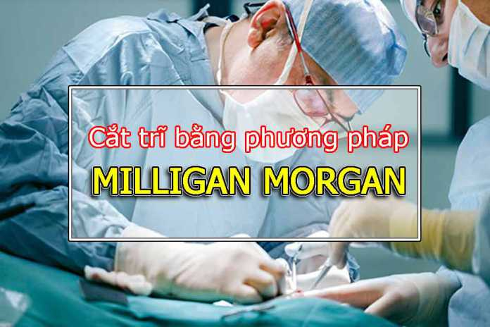 Phương pháp Milligan Morgan