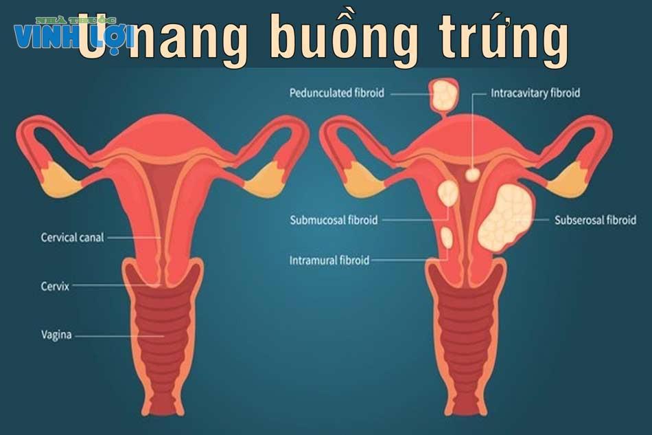 U nang buồng trứng xảy ra với phụ nữ đang ở thời kỳ tiền mãn kinh hoặc bị mất cân bằng nội tiết tố