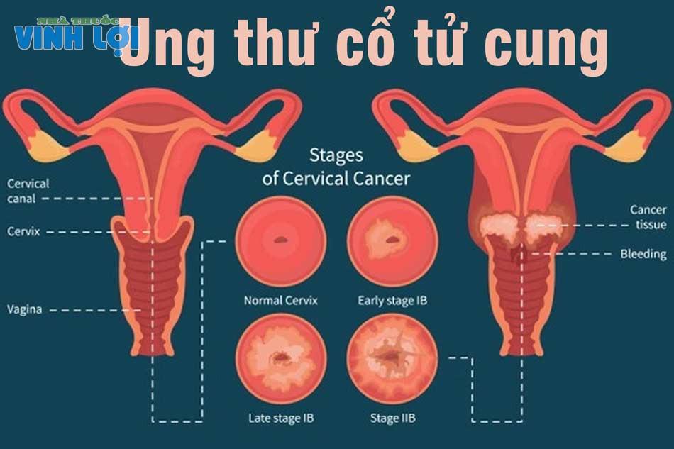 Ung thư cổ tử cung là bệnh nguy hiểm đến tính mạng