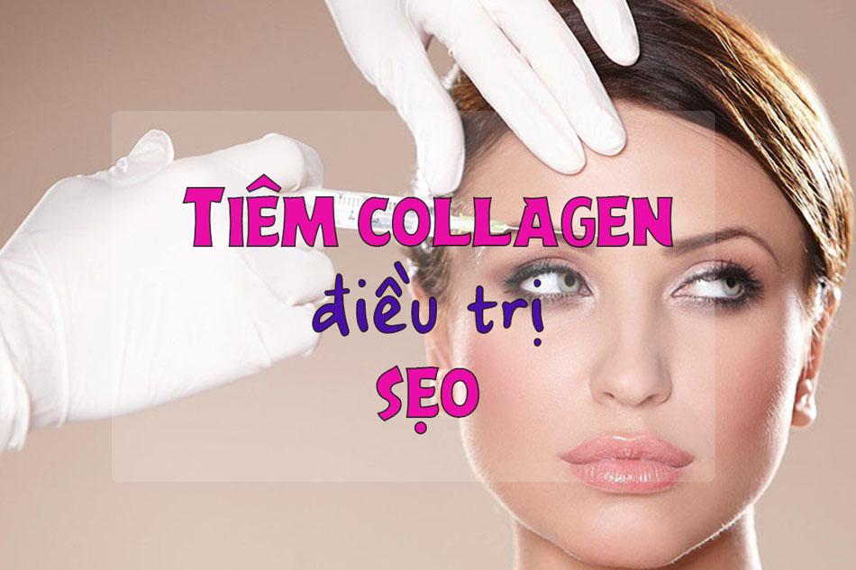Điều trị sẹo bằng cách tiêm collagen
