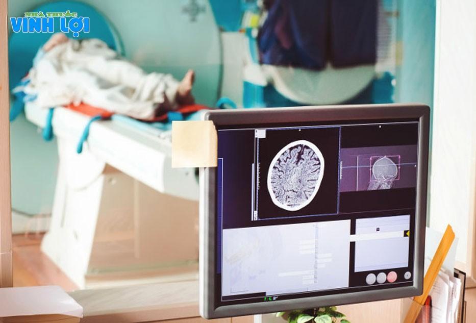 Các phương pháp chuẩn đoán thiểu năng tuần hoàn não