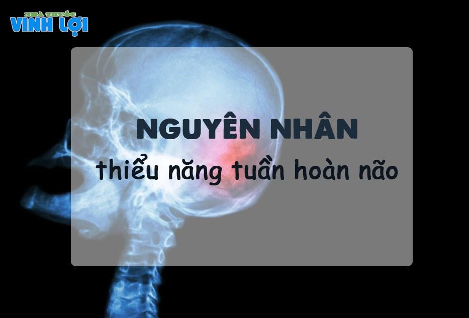 Nguyên nhân gây thiểu năng tuần hoàn não
