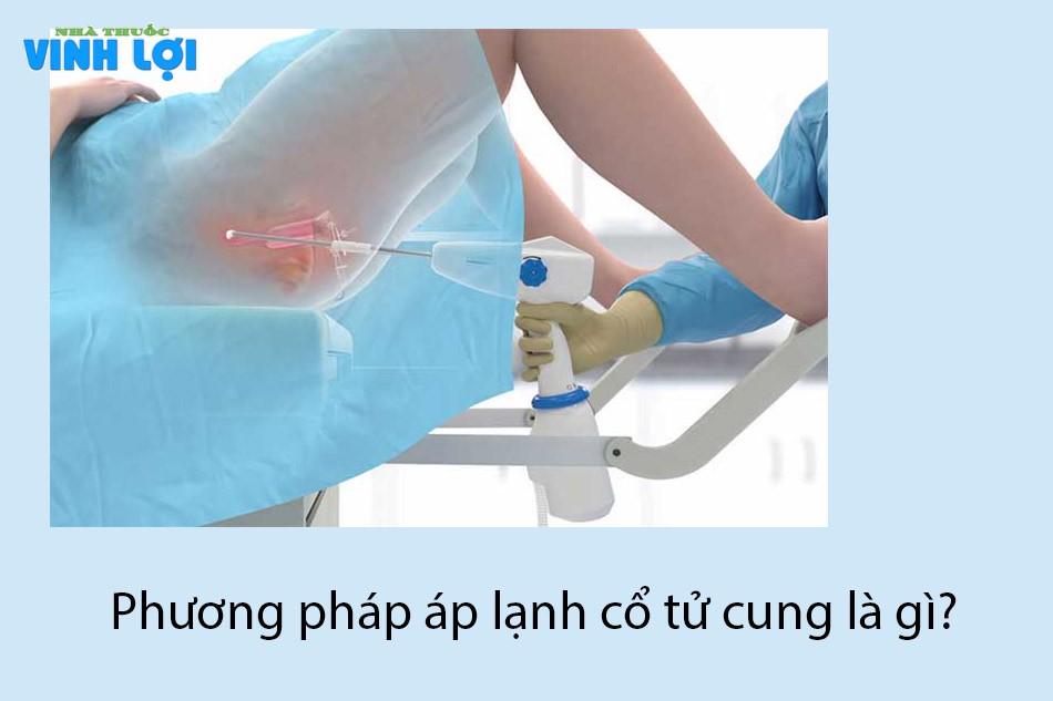 Phương pháp áp lạnh cổ tử cung là gì?