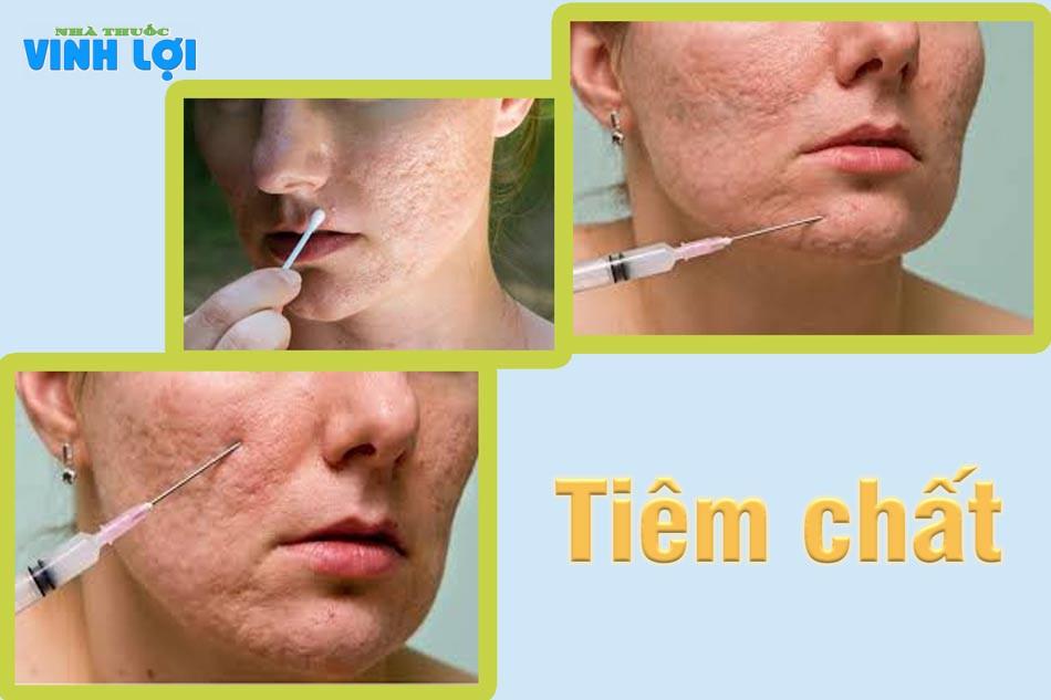 Phương pháp tiêm chất đầy để điều trị sẹo rỗ