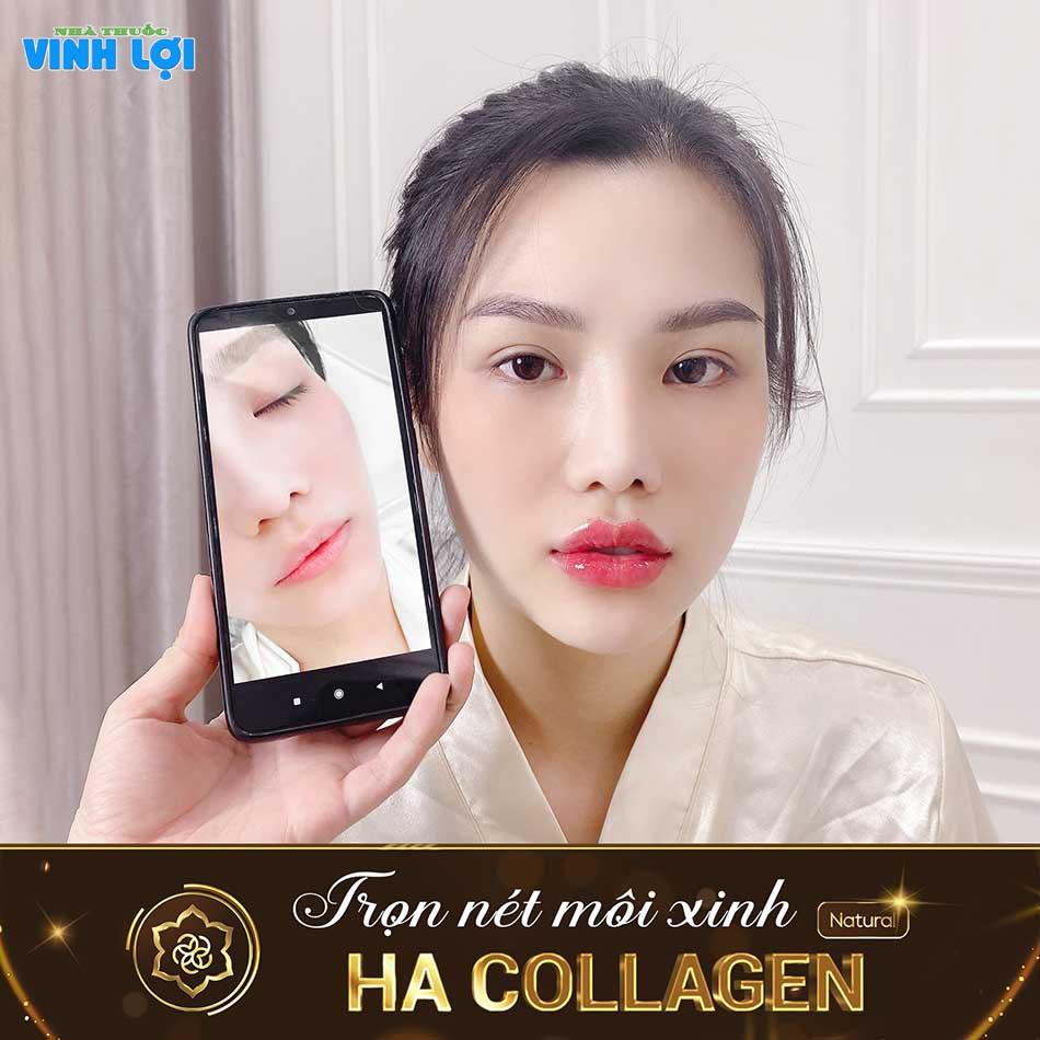Hình ảnh KH sau khi tạo hình môi với Ha Collagen
