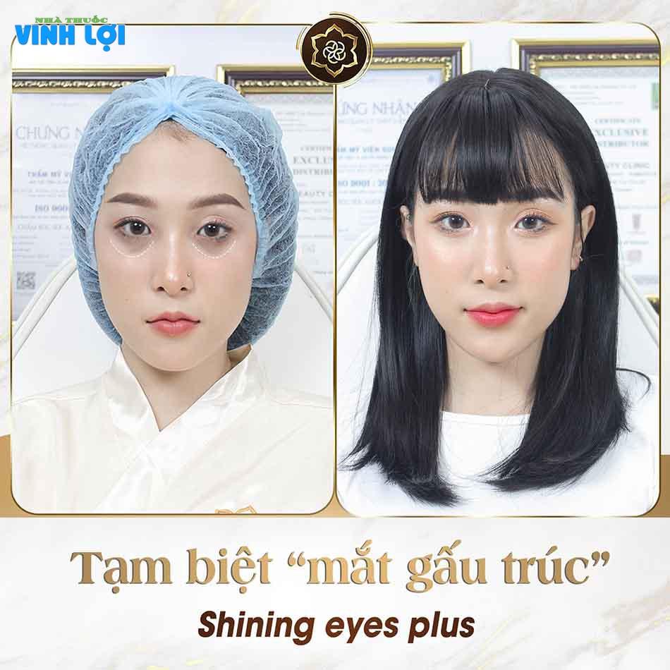 Hình ảnh trước và sau của KH sau khi sử dụng liệu trình Xóa thâm quầng mắt